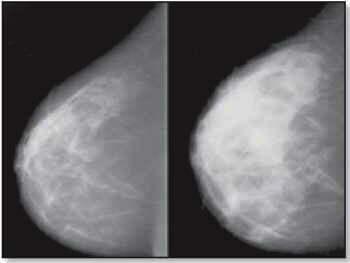 sâni denși mamografie