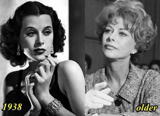 Hedy-Lamarr-Plastic-Surgery