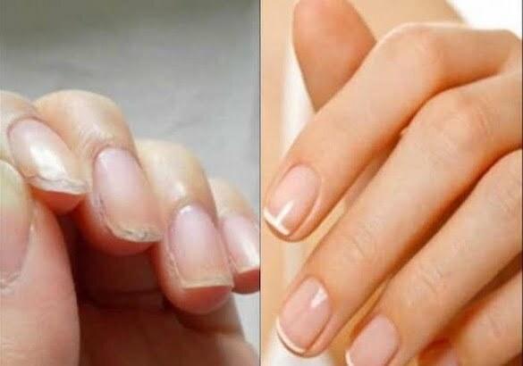 unghii feminohelp